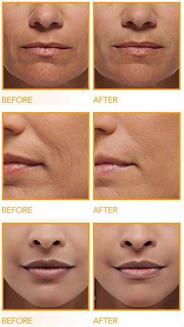 pelle invecchiamento